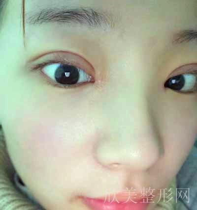 安莎贝拉做双眼皮术后30天图片