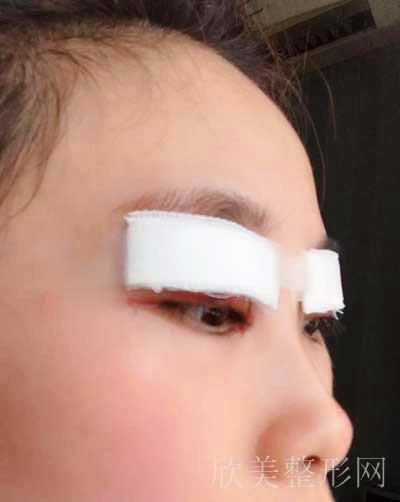安莎-双眼皮拆线后图片