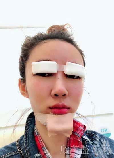 双眼皮术后10天图片