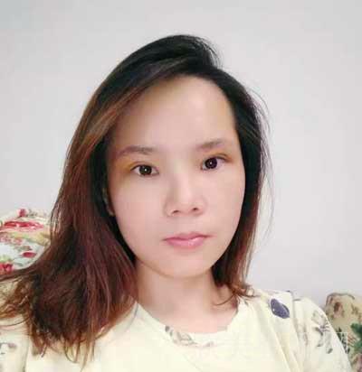 成都安莎贝拉张蕾医生双眼皮整形手术,真实案例分享附赠术后效果对比图~