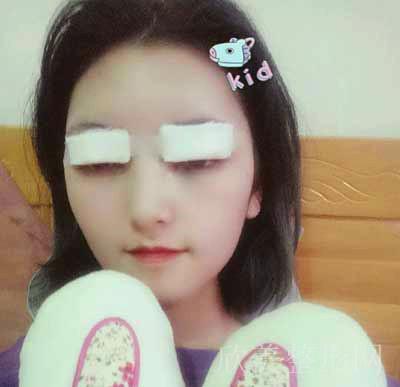 安莎贝拉-张蕾医生做双眼皮拆线后照片