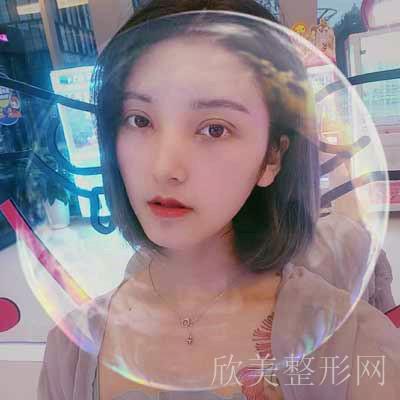 安莎贝拉-张蕾医生做双眼皮术后7天照片