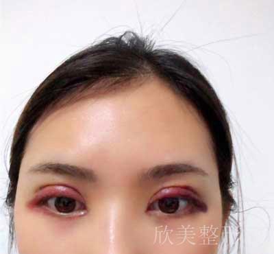 全切双眼皮术后7天图片