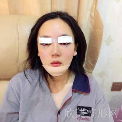 张蕾做眼综合整形术后7天