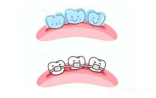 矫正拔四颗牙齿有危险吗