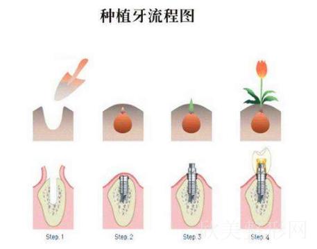 广州光华口腔医院的收费标准