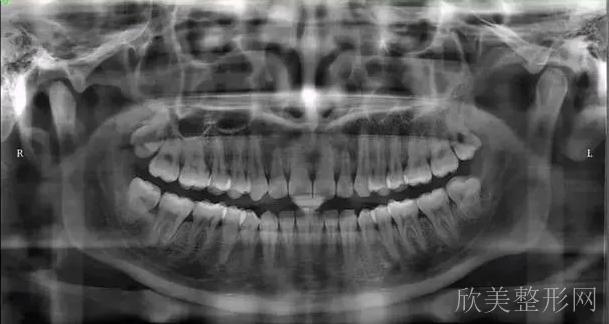 牙齿矫正如何避免套路