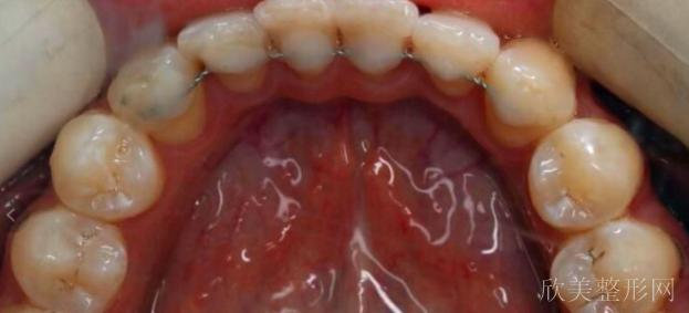 舌侧保持器收费标准
