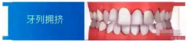 怎么看自己用不用矫正牙齿