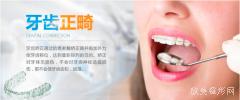 还不知道怎么看自己用不用矫正牙齿?看完这篇再拿主意!