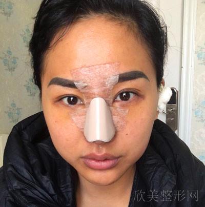 隆鼻术后12天图片