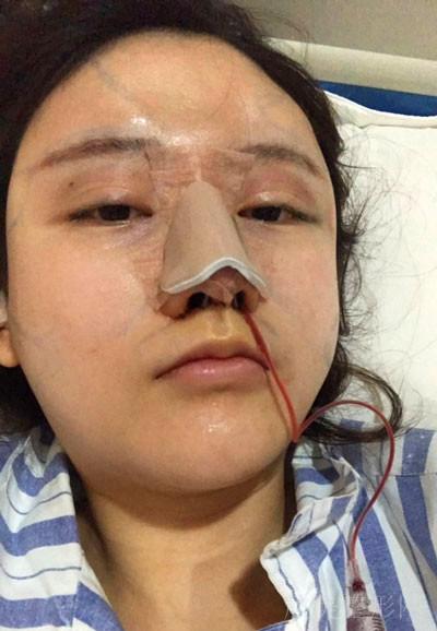 蓉雅-陈建华做鼻中隔综合手术术后30天