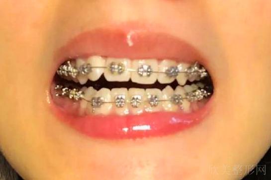 如果只有一两个牙齿歪了