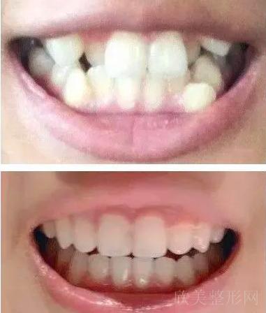 整牙就会被坑?