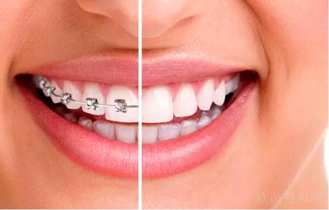 牙齿矫正的注意事项