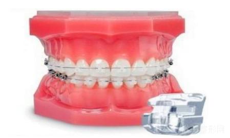 带牙齿矫正器有什么注意事项