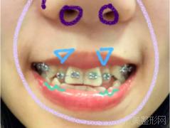 戴牙套第一个月有什么变化?效果很满意哦~