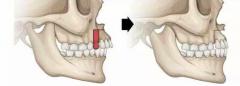 骨性凸嘴戴牙套有用吗?我们一起来看看吧