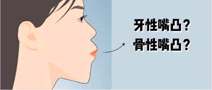 骨性凸嘴戴牙套有用吗