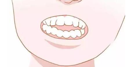哪些牙齿情况需要矫正?