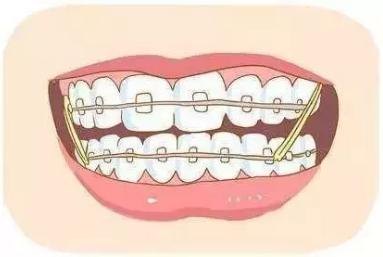 牙齿矫正只是为了美观?