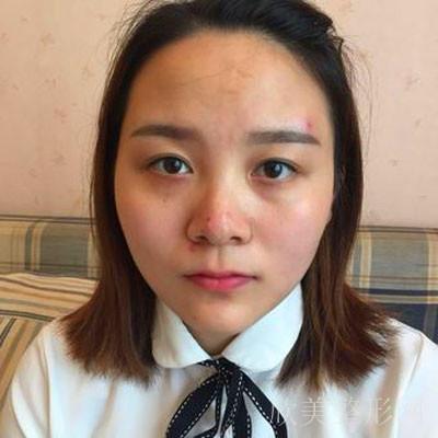 的鼻综合整形术前照