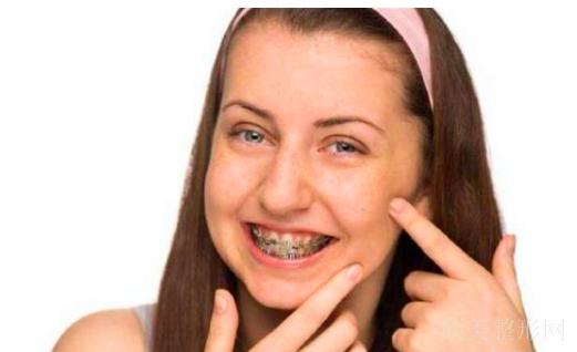 戴牙套为什么脸会瘦