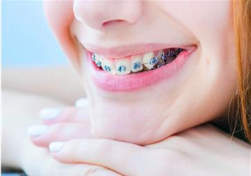 13岁戴牙套以后会有后遗症么