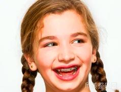 矫正牙齿的时间长吗?一般需要多久?