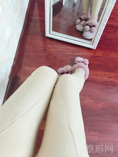 吸脂瘦大腿术后45天