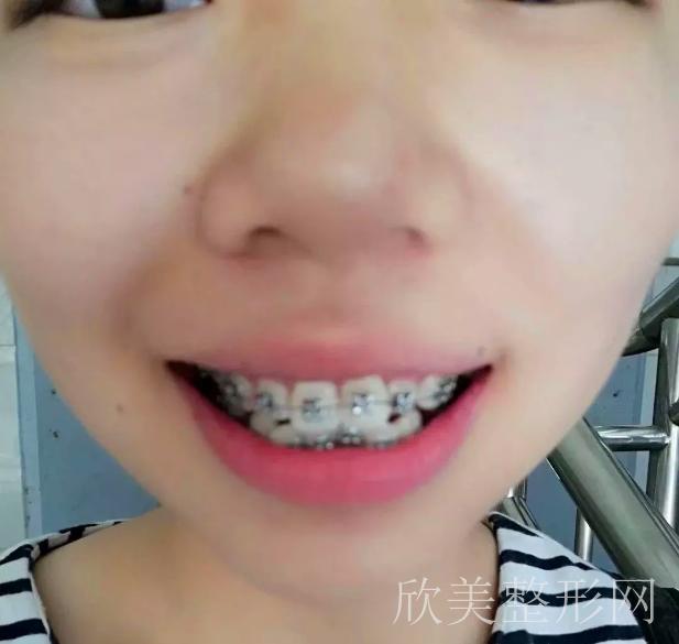 矫正牙齿第一个月的变化图
