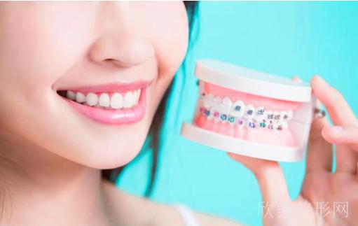 矫正牙齿一个月能看出效果吗