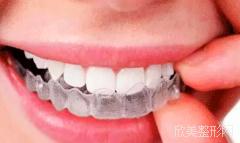 半隐形牙套价格比钢丝贵多少,避免矫正牙齿时踩雷哦