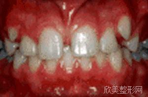 牙齿矫正中途想放弃的人要坚持到底