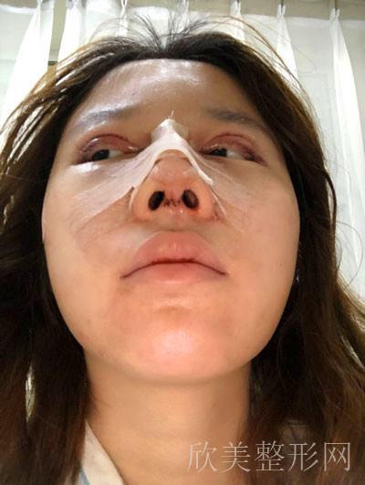 隆鼻术后45天