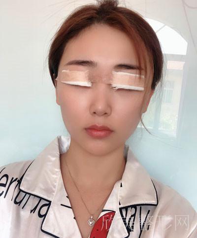 双眼皮术后45天