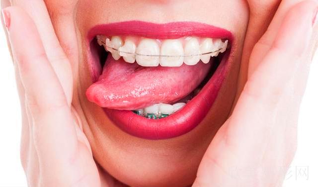 成年后可以做牙齿矫正吗