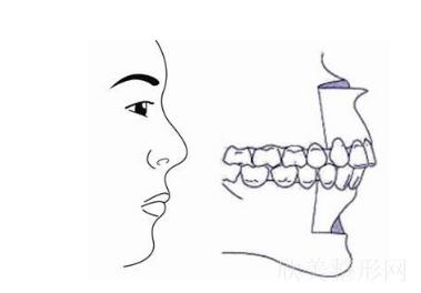 牙齿正畸结束后仍然牙突怎么办