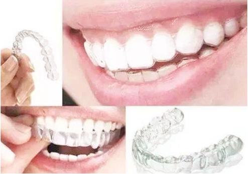 牙套哪阶段会最丑