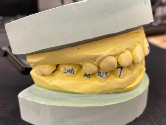 戴牙套要经历哪几个阶段