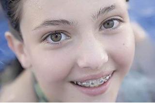 青少年牙齿矫正后遗症严重吗