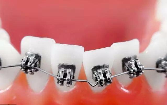 30岁牙齿矫正后遗症和危害