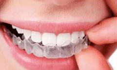 单排牙齿不齐,可以只做半口矫正吗?