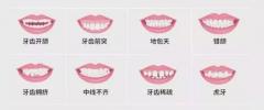 哈尔滨隐形矫正牙齿多少钱?隐形矫正牙齿价格表参考