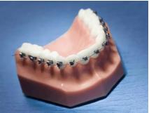 哈尔滨牙齿正畸