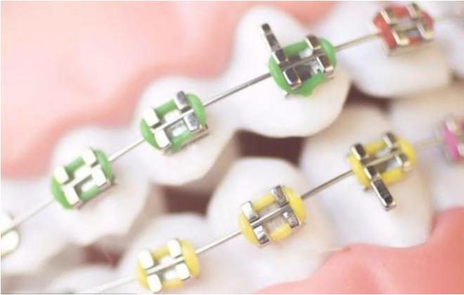 牙齿正畸失败后的补救方法
