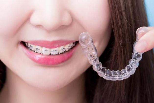 牙齿正畸费用大概需要多少