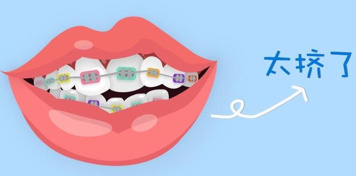 用什么方法可以矫正牙齿拥挤