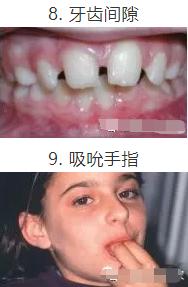 矫正牙齿最好的年龄是几岁