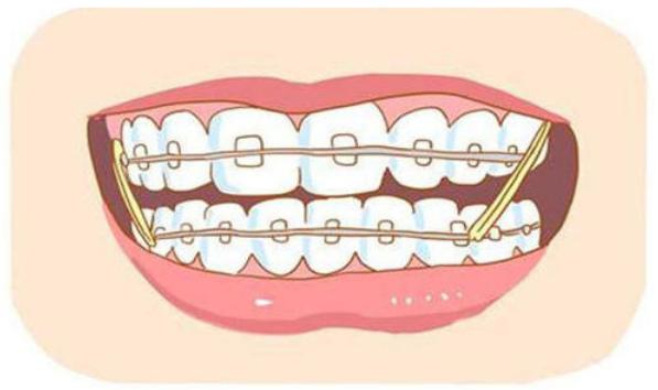 28岁牙齿矫正对以后有影响吗
